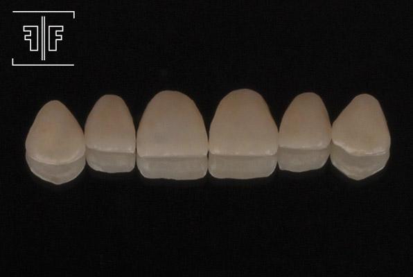 facetas-porcelana-4